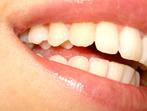 Отстраняване на зъбната плака