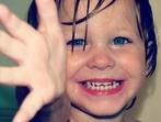 Как да спасим детската усмивка